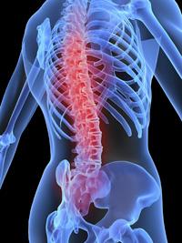 08-osteoporosis2