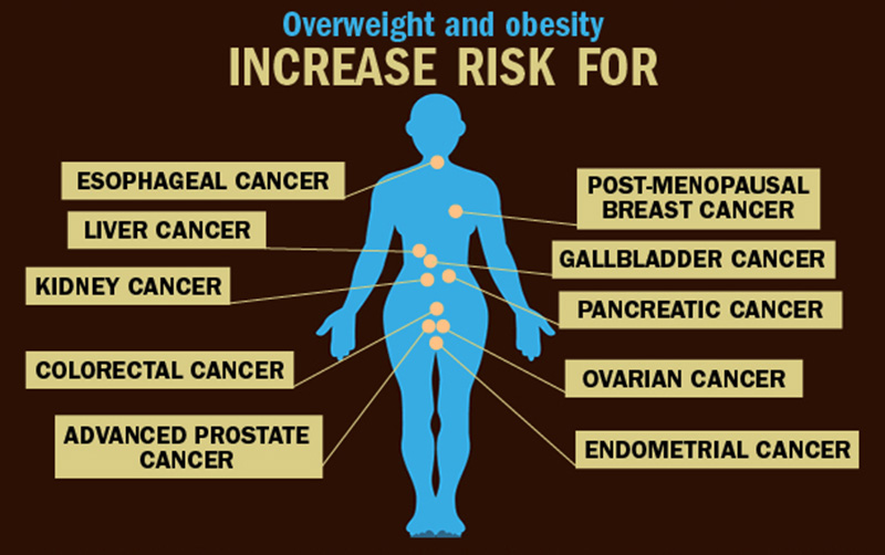 Obesity and Cancer Prevention